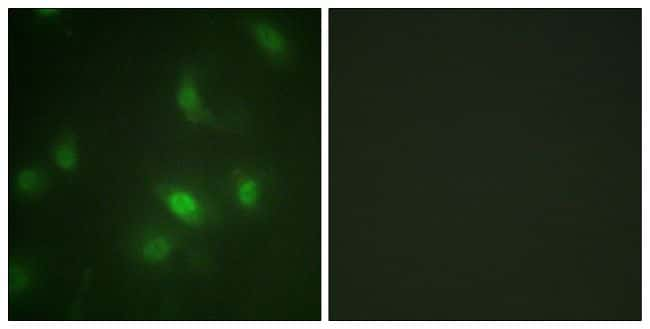 Phospho-STAT5 alpha (Ser725) Antibody in Immunofluorescence (IF)