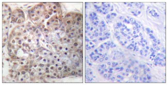 Phospho-STAT5 alpha (Ser725) Antibody in Immunohistochemistry (Paraffin) (IHC (P))