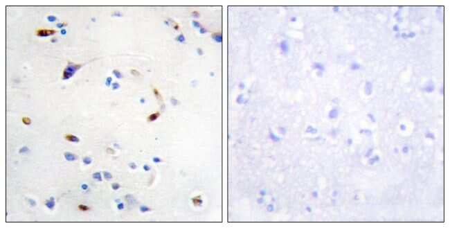 ZEB2 Antibody in Immunohistochemistry (Paraffin) (IHC (P))