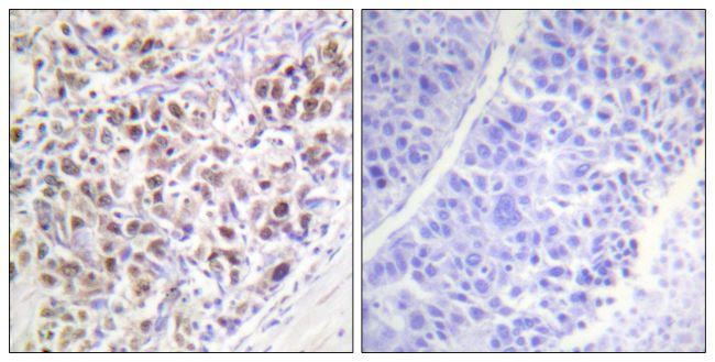 Phospho-Aurora B (Thr232) Antibody in Immunohistochemistry (Paraffin) (IHC (P))