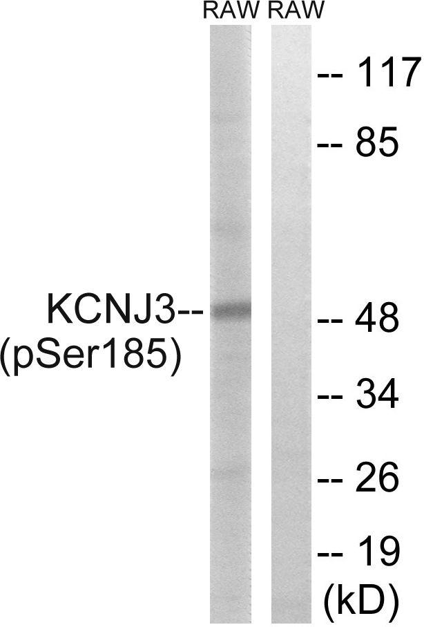 Phospho-Kir3.1 (Ser185) Antibody in Western Blot (WB)