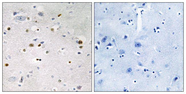 ZNF7 Antibody in Immunohistochemistry (Paraffin) (IHC (P))