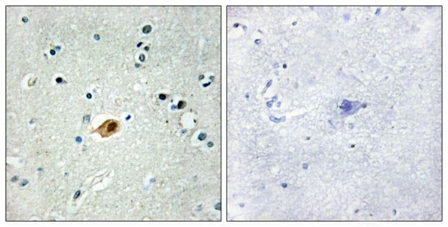 SOX8/SOX9/SOX17/SOX18 Antibody in Immunohistochemistry (Paraffin) (IHC (P))