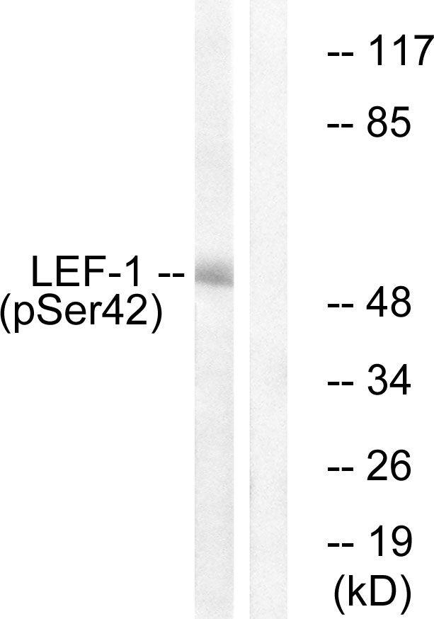 Phospho-LEF1 (Ser42) Antibody in Western Blot (WB)