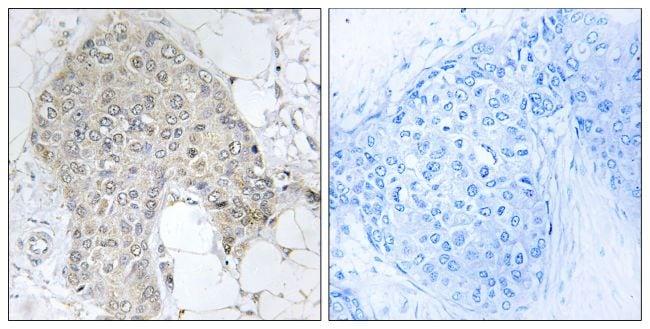 PPP1R2 Antibody in Immunohistochemistry (Paraffin) (IHC (P))