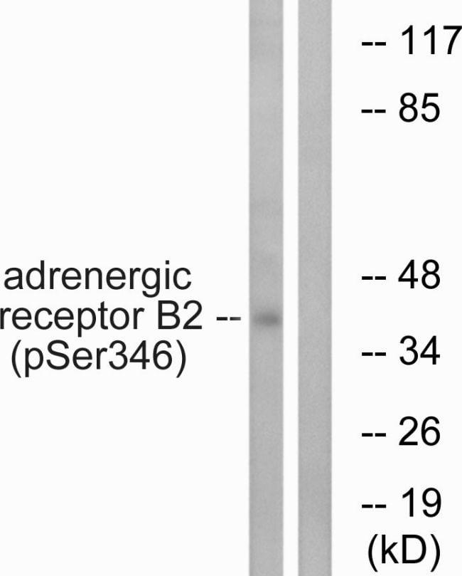 Phospho-beta-2 Adrenergic Receptor (Ser346) Antibody in Western Blot (WB)