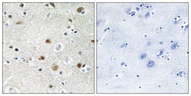 BRF1 Antibody in Immunohistochemistry (Paraffin) (IHC (P))
