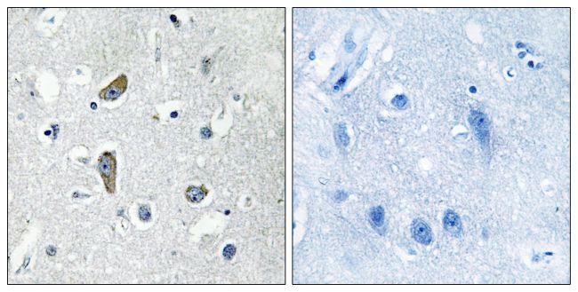 CDK5RAP2 Antibody in Immunohistochemistry (Paraffin) (IHC (P))