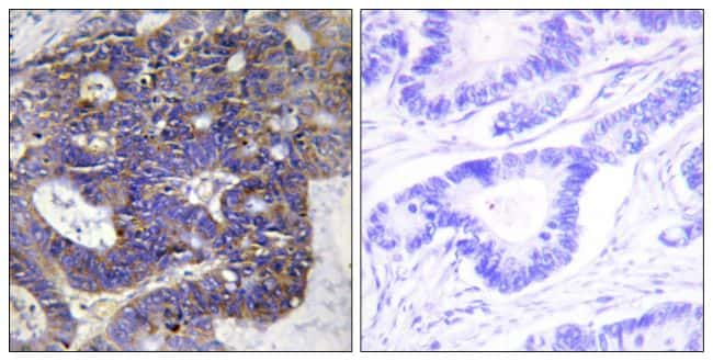 COL4A2 Antibody in Immunohistochemistry (Paraffin) (IHC (P))