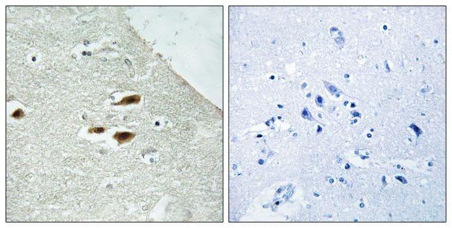 Phospho-PER2 (Ser662) Antibody in Immunohistochemistry (Paraffin) (IHC (P))
