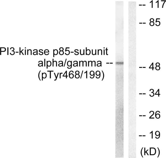 Phospho-PI3K p85/p55 (Tyr467, Tyr199) Antibody in Western Blot (WB)