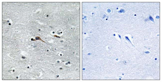 CYTL1 Antibody in Immunohistochemistry (Paraffin) (IHC (P))
