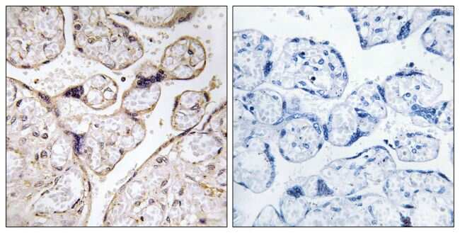 ACER3 Antibody in Immunohistochemistry (Paraffin) (IHC (P))