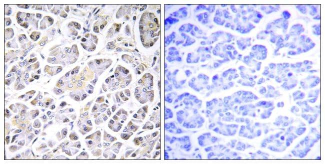 ATP5G3 Antibody in Immunohistochemistry (Paraffin) (IHC (P))