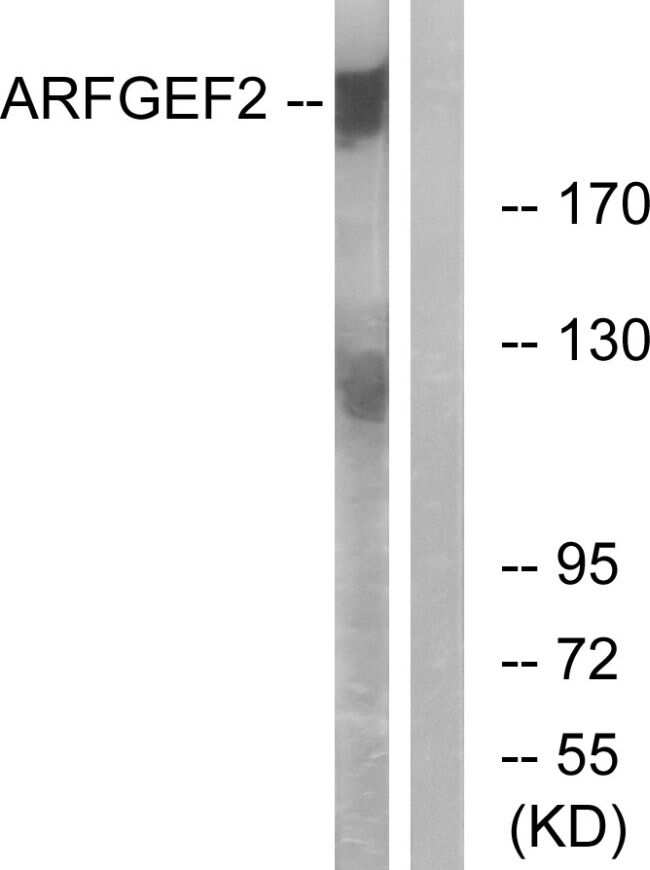 ARFGEF2 Antibody in Western Blot (WB)