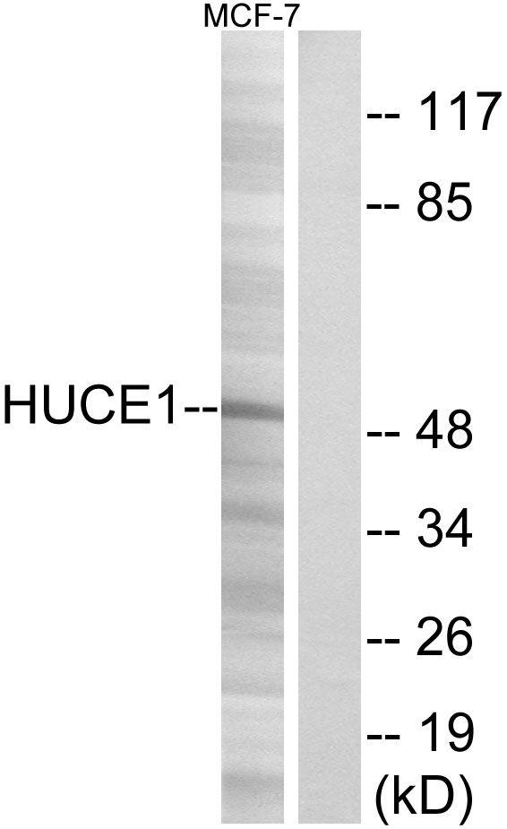Cerebral Protein 1 Antibody in Western Blot (WB)