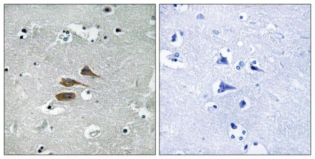 MARCH3 Antibody in Immunohistochemistry (Paraffin) (IHC (P))
