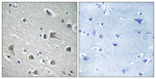 MYLIP Antibody in Immunohistochemistry (Paraffin) (IHC (P))