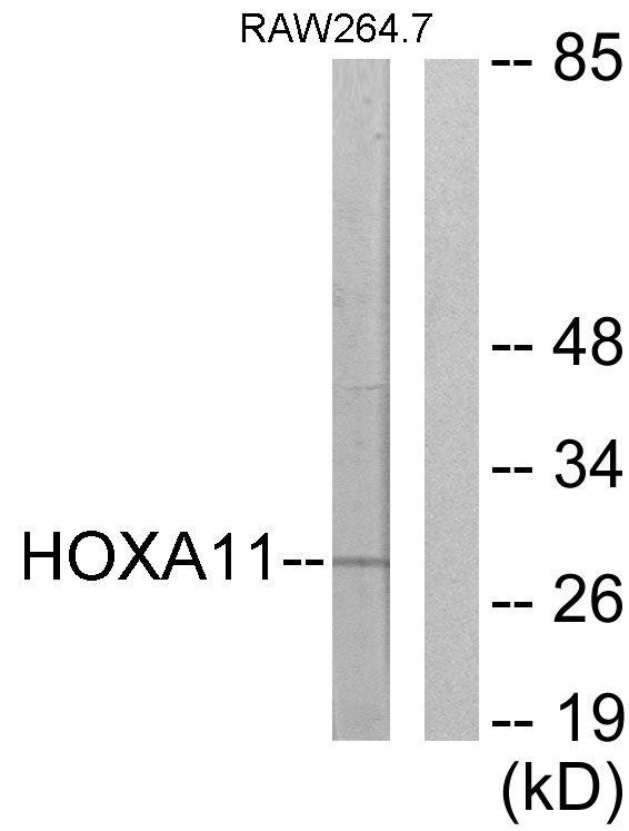 HOXA11/HOXD11 Antibody in Western Blot (WB)