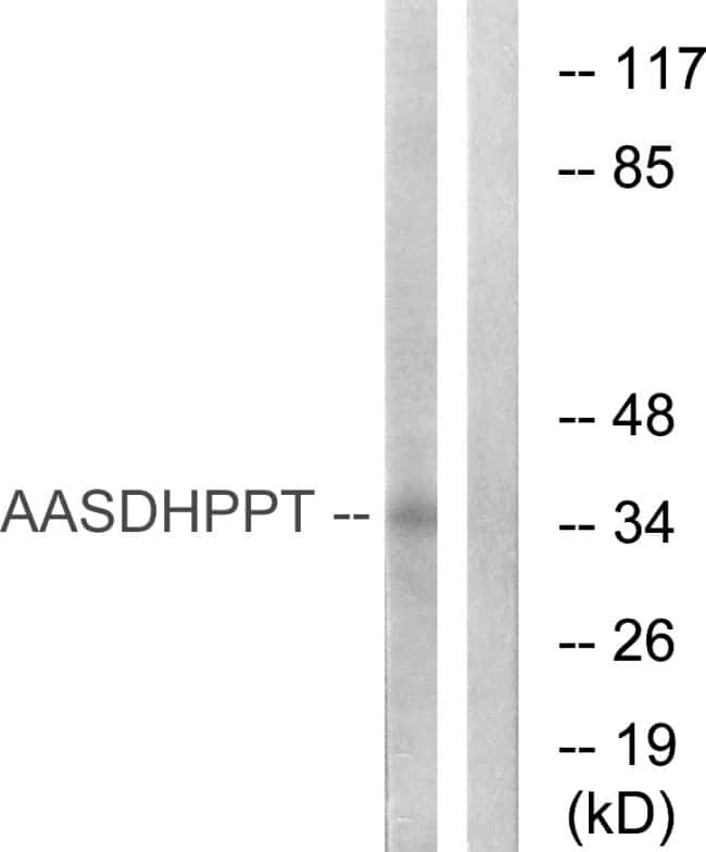 AASDHPPT Antibody in Western Blot (WB)