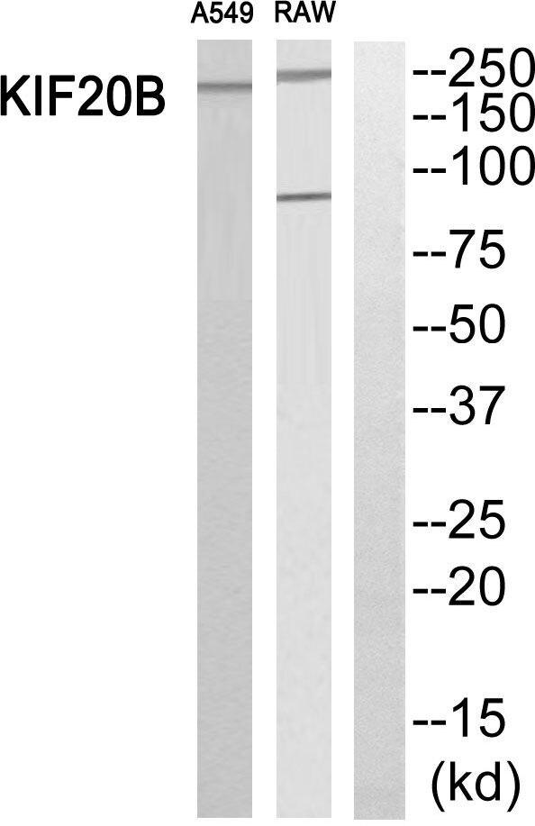 MPHOSPH1 Antibody in Western Blot (WB)
