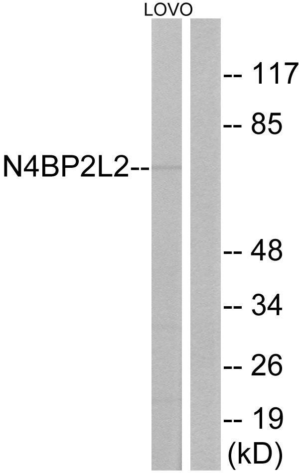 N4BP2L2 Antibody in Western Blot (WB)
