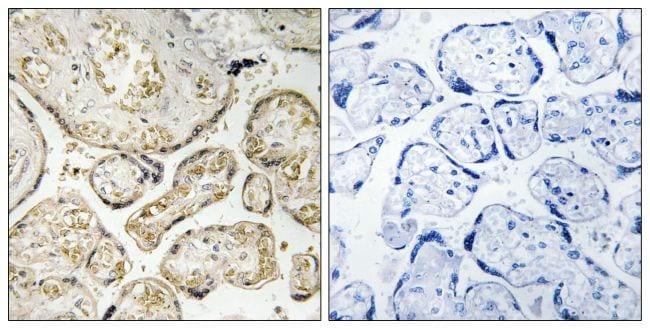 APOBEC3D/APOBEC3F Antibody in Immunohistochemistry (Paraffin) (IHC (P))