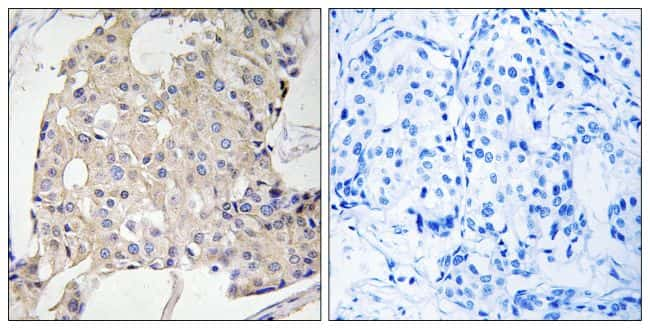 NDRG3 Antibody in Immunohistochemistry (Paraffin) (IHC (P))