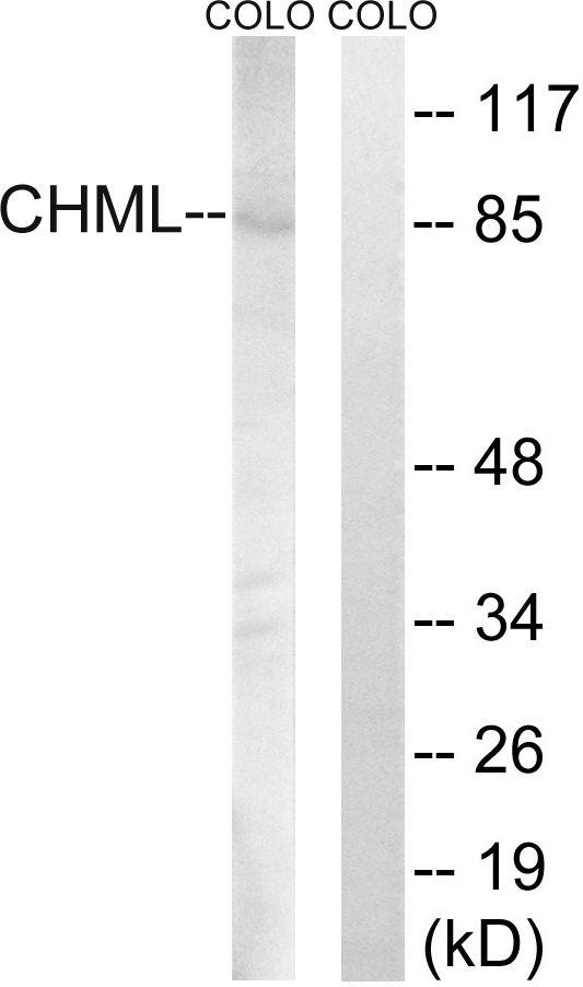 CHML Antibody in Western Blot (WB)