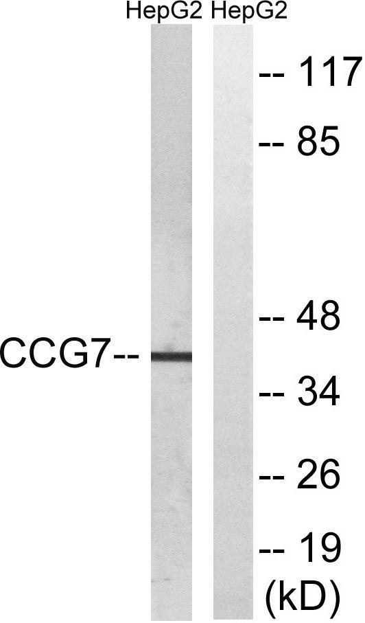 CACNG7 Antibody in Western Blot (WB)