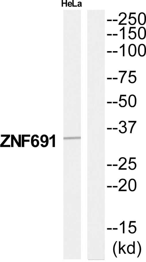 ZNF691 Antibody in Western Blot (WB)