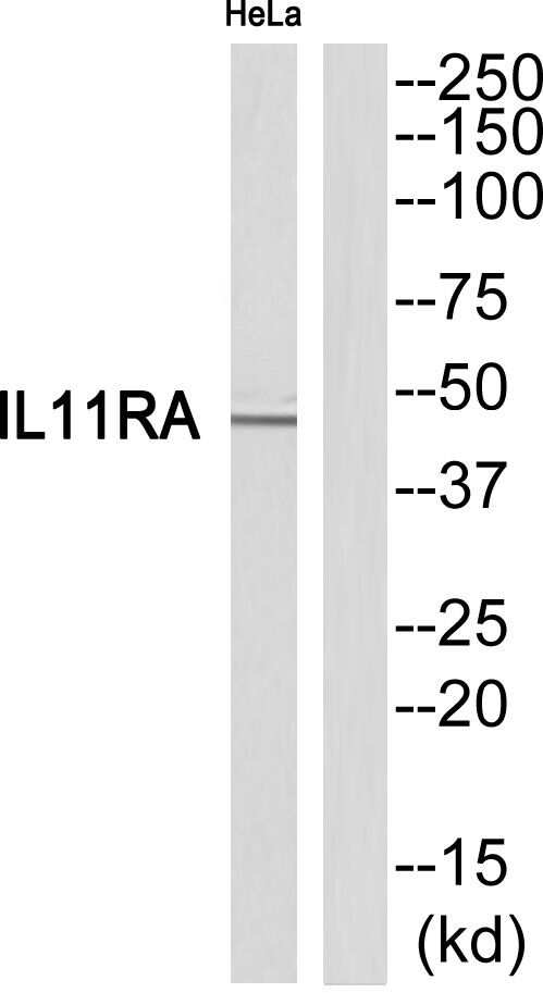 IL11RA Antibody in Western Blot (WB)