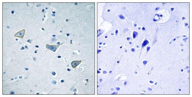 GPR158 Antibody in Immunohistochemistry (Paraffin) (IHC (P))