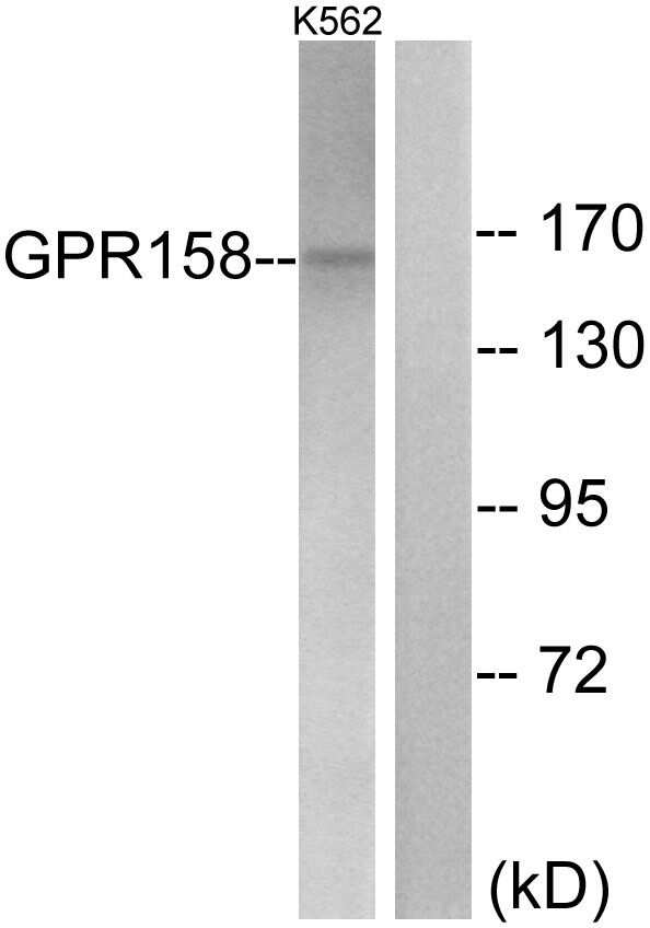 GPR158 Antibody in Western Blot (WB)