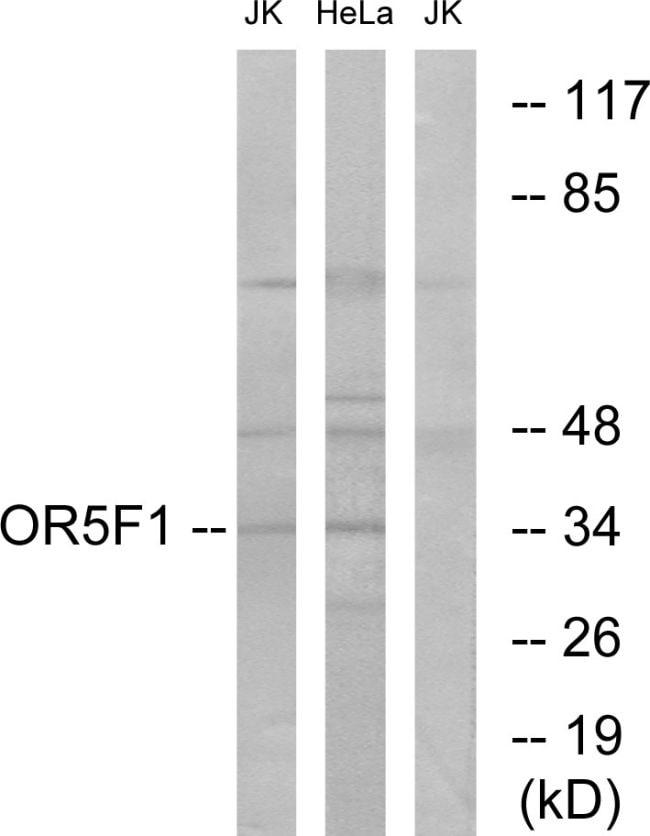 OR5F1 Antibody in Western Blot (WB)