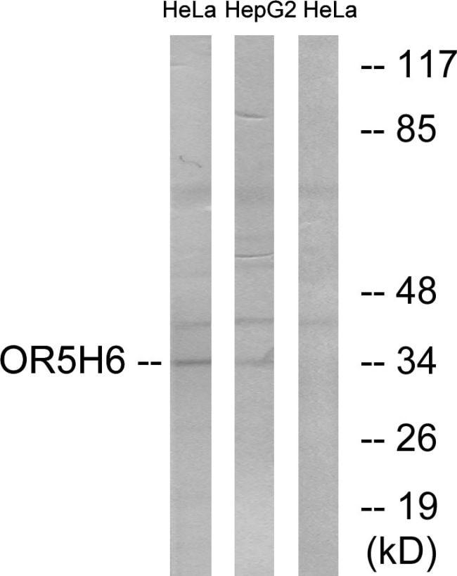 OR5H6 Antibody in Western Blot (WB)