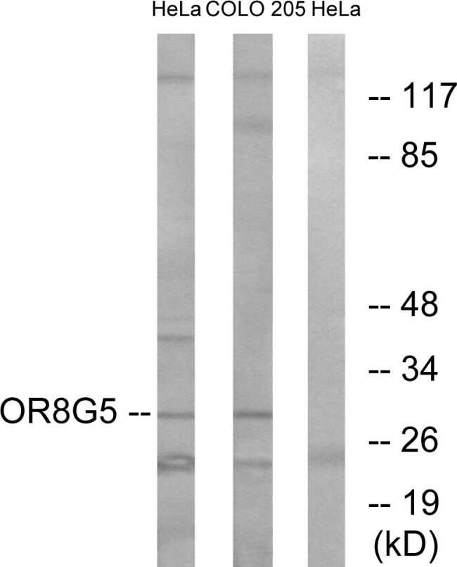 OR8G5 Antibody in Western Blot (WB)