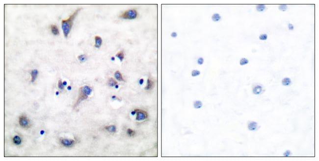 Phospho-DARPP-32 (Thr34) Antibody in Immunohistochemistry (Paraffin) (IHC (P))