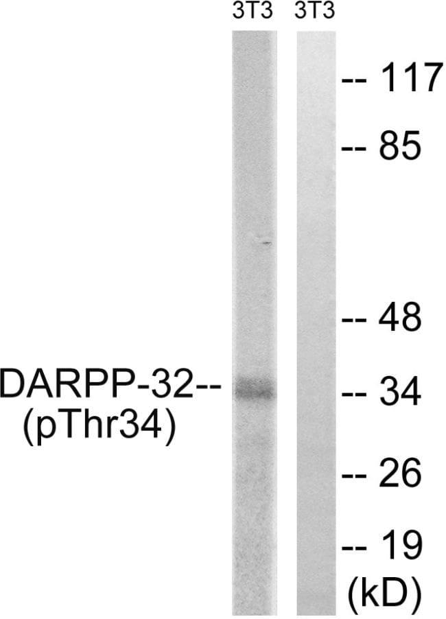 Phospho-DARPP-32 (Thr34) Antibody in Western Blot (WB)