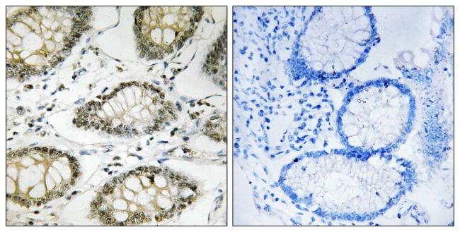 Phospho-ATR (Ser428) Antibody in Immunohistochemistry (Paraffin) (IHC (P))