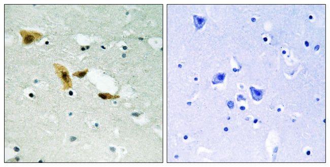 APLF Antibody in Immunohistochemistry (Paraffin) (IHC (P))