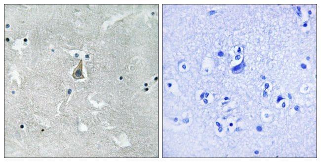 Phospho-Bax (Ser184) Antibody in Immunohistochemistry (Paraffin) (IHC (P))