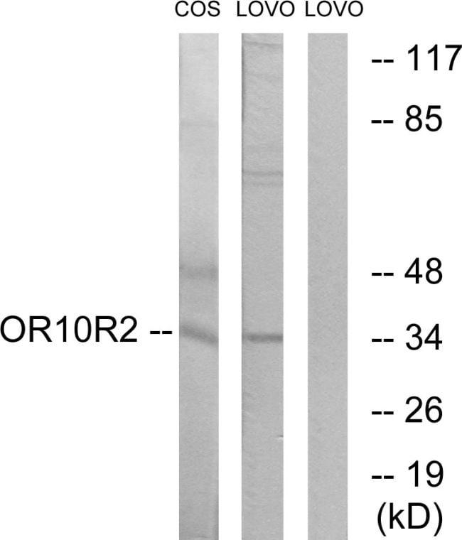 OR10S1 Antibody in Western Blot (WB)