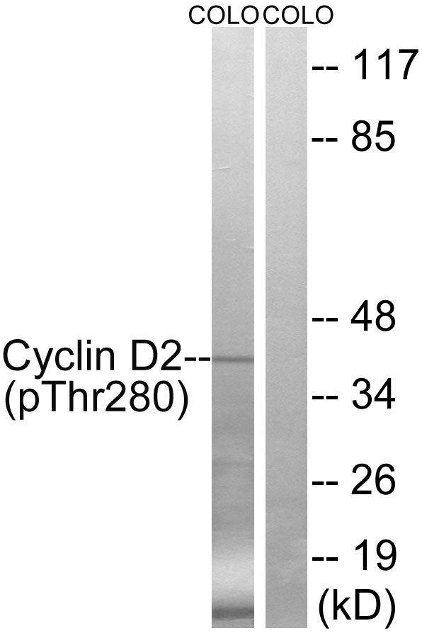 Phospho-Cyclin D2 (Thr280) Antibody in Western Blot (WB)