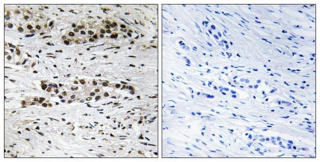 Phospho-Estrogen Receptor alpha (Ser102) Antibody in Immunohistochemistry (Paraffin) (IHC (P))