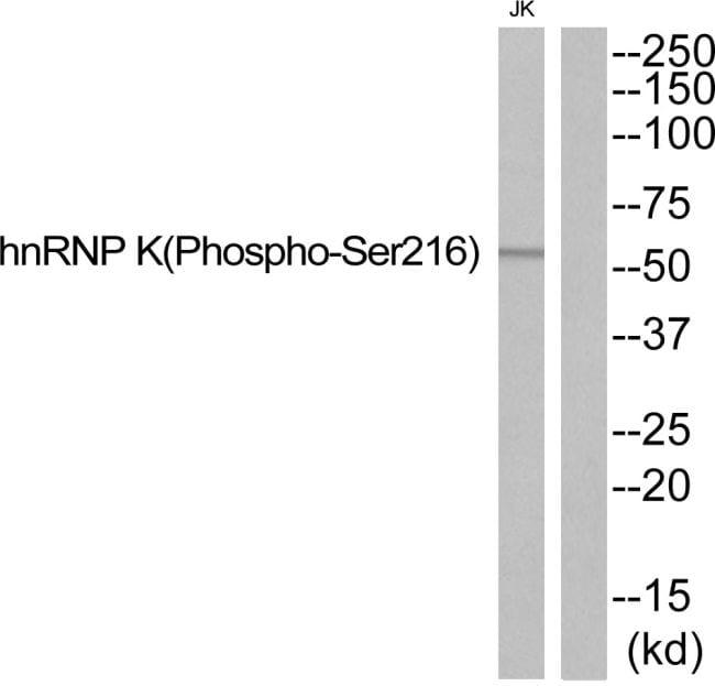 Phospho-hnRNP K (Ser216) Antibody in Western Blot (WB)