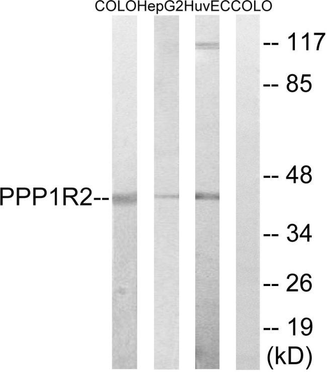 PPP1R2 Antibody in Western Blot (WB)