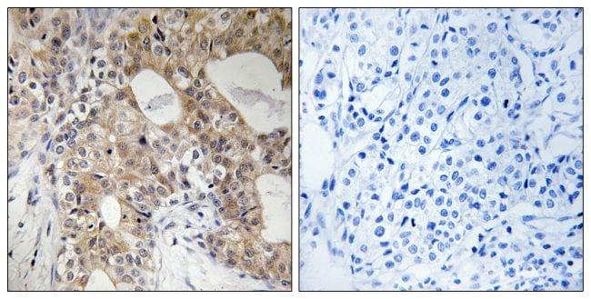 Phospho-SPHK2 (Thr614) Antibody in Immunohistochemistry (Paraffin) (IHC (P))