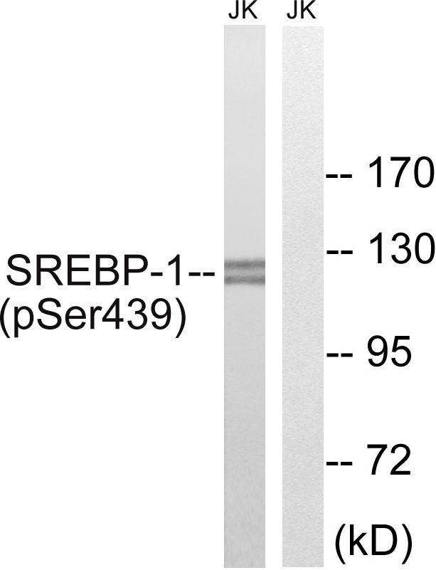 Phospho-SREBP1 (Ser439) Antibody in Western Blot (WB)