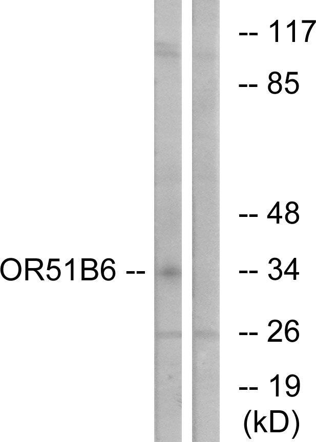 OR51B6 Antibody in Western Blot (WB)
